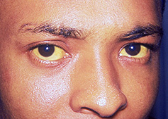Hepatitis B Patient Eyes Yellow fever - includi...