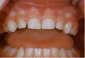 Image of healthy teeth