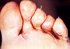 Fungal infections of the hair, skin or nails - including