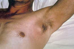 buboes - painful inflamed lymph nodes in the underarm