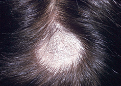fungal infection on the top of the scalp