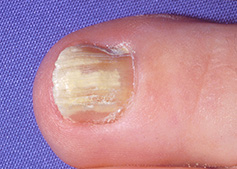 fungal infection on the toe nail