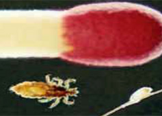 enlarged version of a head louse and egg